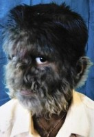 hypertrichosis (1)